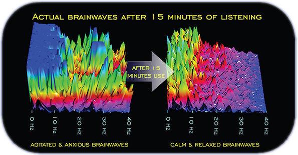 brainwaves_delta_alpha_entrainment